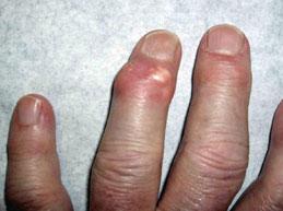 Все об артрозе кисти рук: симптомы, действенное лечение