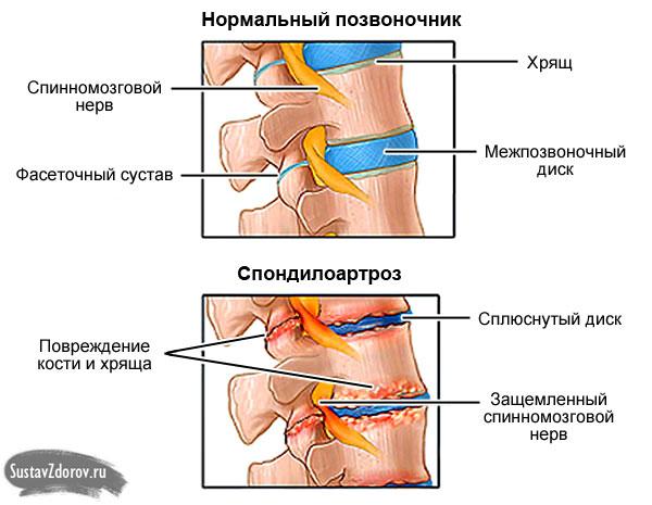 щитовидная железа запах изо рта