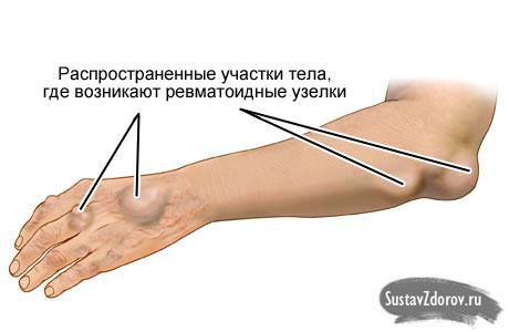 Изображение - Артрит коленного сустава у подростка h9991510_002
