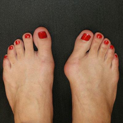 hallux valgus или косточка на ноге