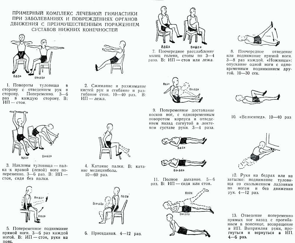 Комплекс упражнений при болезни суставо хондромаляция коленного сустава фото