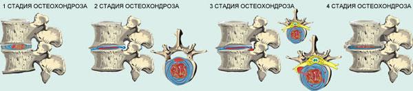 4 стадии остеохондроза