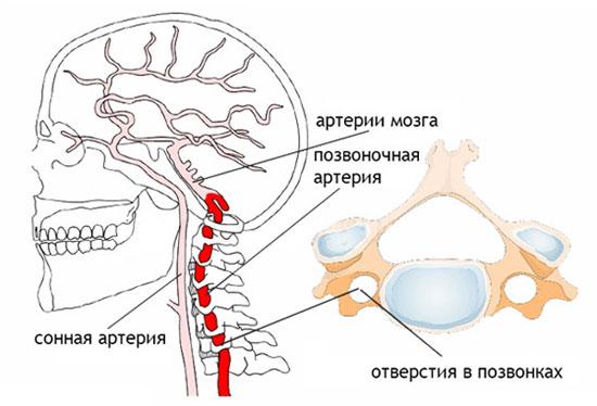 позвоночная артерия в шейном отделе позвоночника