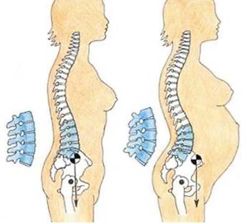 Мазь при остеохондрозе поясничного отдела при беременности