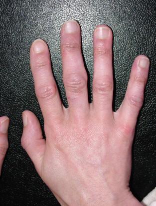 Характерные симптомы и лечение артрита кистей рук