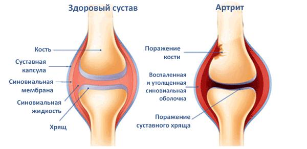 Изображение - Артрит коленного сустава у подростка rheumotoidArthritis_illustration-mini