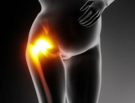 болит тазобедренный сустав при беременности