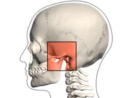 Симптомы и лечение артроза челюстного сустава