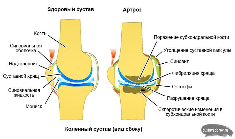 Артрит и артроз стопы симптомы и лечение