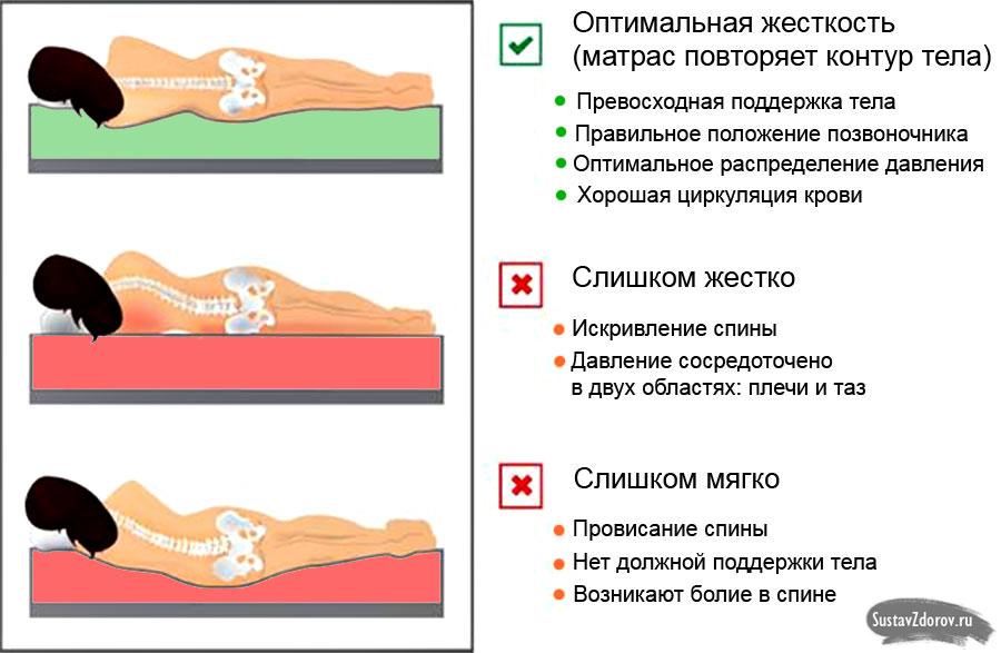 Как надо спать при остеохондрозе