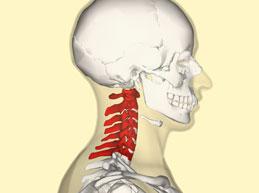 поражение шейных позвонков остеохондрозом