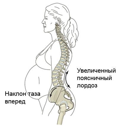 изменения в опорно-двигательном аппарате у беременной женщины