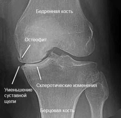 рентгеновский снимок коленного сустава, пораженного артрозом 2 степени