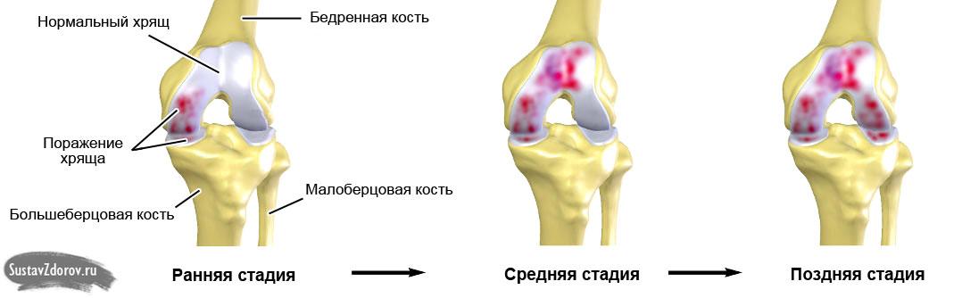 Деформирующий гонартроз коленного сустава 2 степени лечение замена тазобедренного сустава цена в москве по квоте