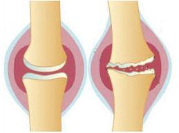 Симптомы, лечение, особенности артроза коленного сустава 1 степени