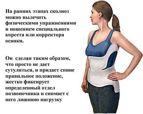 лечение сколиоза упражнениями и ношением корсета