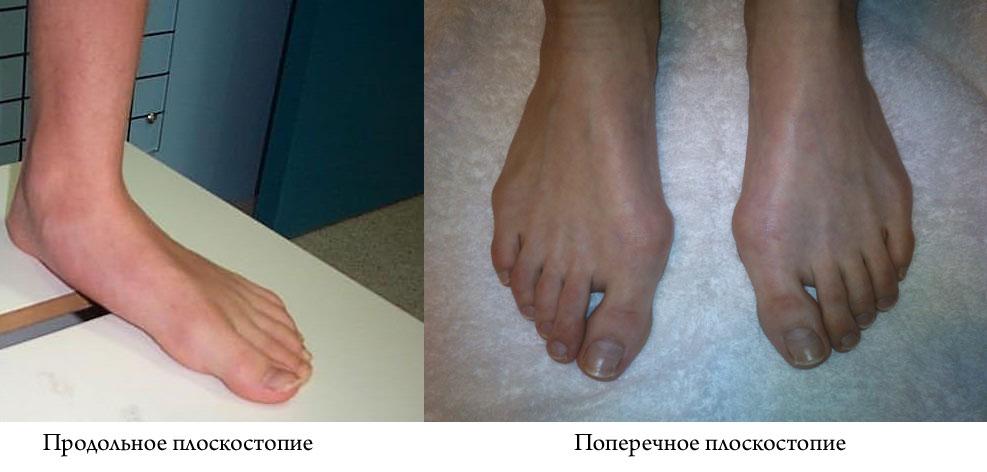 Артроз 3 степени плюснефалангового сустава лечение отека суставов