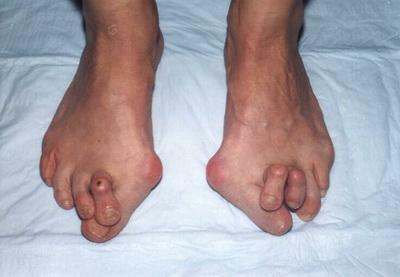 искривленные пальцы при плюснефаланговом артрозе