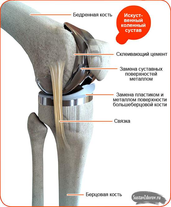строение искусственного коленного сустава