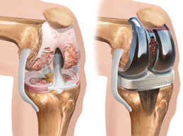 Одновременная замена коленных суставов – инновационное лечение от израильских врачей
