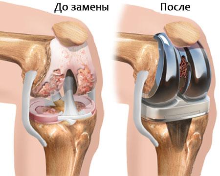 состояние коленного сустава до и после замены
