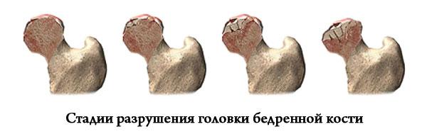 стадии разрушения головки бедренной кости