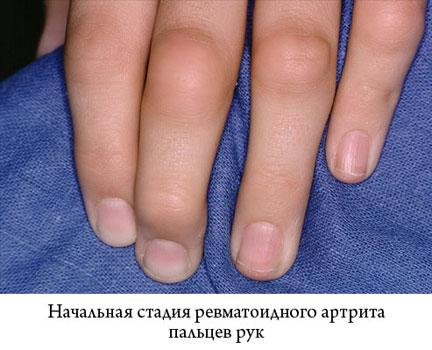 отек суставов пальцев
