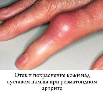 отек и покраснение кожи над суставами пальцев при ревматоидном артрите