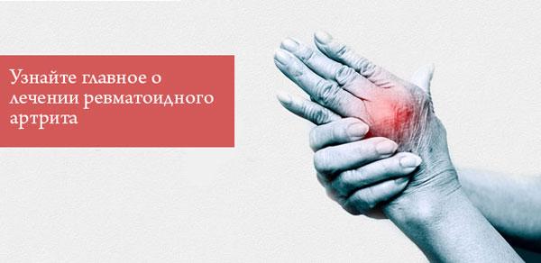 боль в суставах пальцев рук при ревматоидном артрите