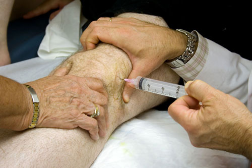 Метод лечения ревматоидного артрита thumbnail