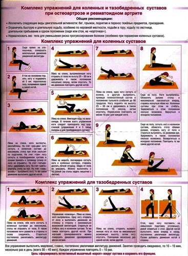 упражнения при ревматоидном артрите и остеоартрозе