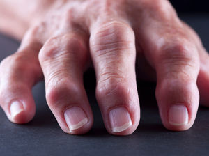 пальцы рук, пораженные ревматоидным артритом