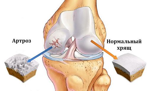 артроз и здоровый хрящ коленного сустава