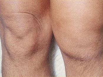 нормальное и отечное колено пациента