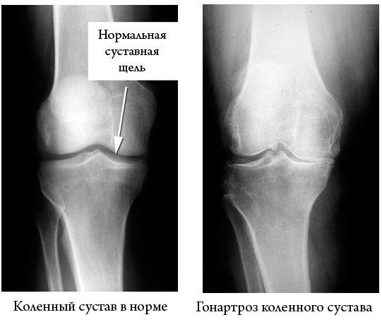 рентгеновский снимок коленных суставов