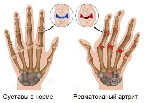 суставы пальцев рук в норме и поврежденные ревматоидным артритом