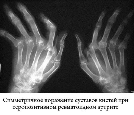 рентгеновский снимок кистей, пораженных серопозитивным ревматоидным артритом