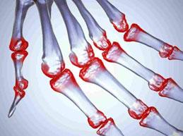 Симптомы, лечение и осложнения серопозитивного ревматоидного артрита