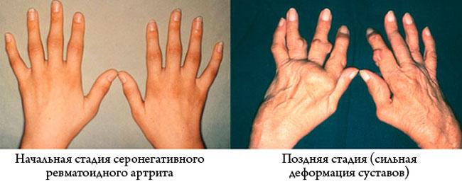 Чем отличается серонегативный от серопозитивного ревматоидного артрита