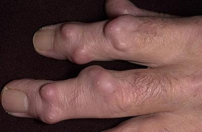 ревматоидные узелки на пальцах рук
