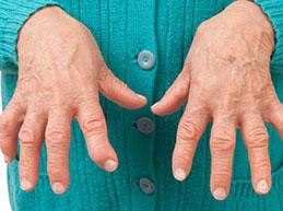 Причины, симптомы серонегативного ревматоидного артрита, лечение и диета