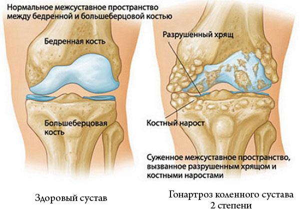 здоровый коленный сустав и гонартроз 2 степени
