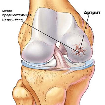 артрит коленного сустава может быть причиной гонартроза