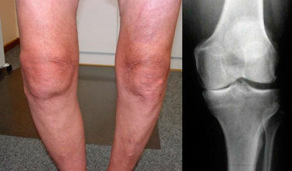 фото и рентгеновский снимок колена с гонартрозом