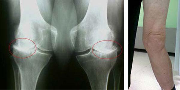 рентген и фото деформированных коленных суставов
