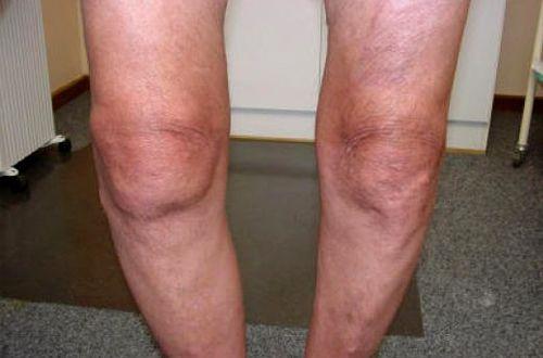 О-образная деформация ног