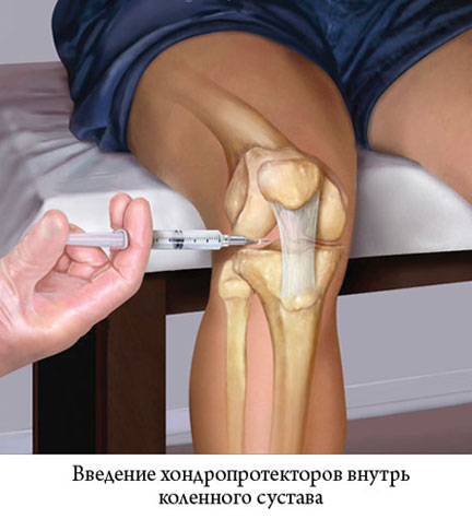 введение хондропротекторов внутрь коленного сустава
