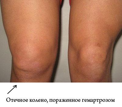 нормальное колено и отечное, пораженное гемартрозом
