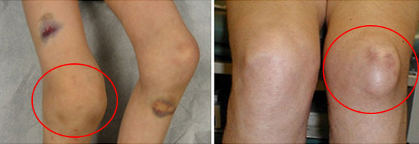 значительное кровоизлияние в полость коленного сустава