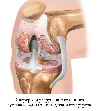 разрушенный коленный сустав